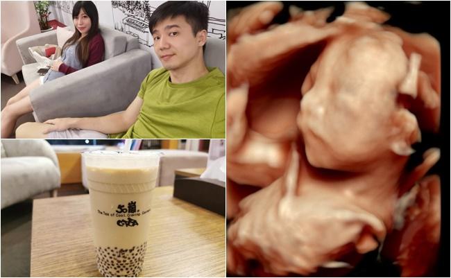 【懷孕21週】高層次超音波,4D超音波看到寶寶真面目,性別正式揭曉 @小環妞 幸福足跡